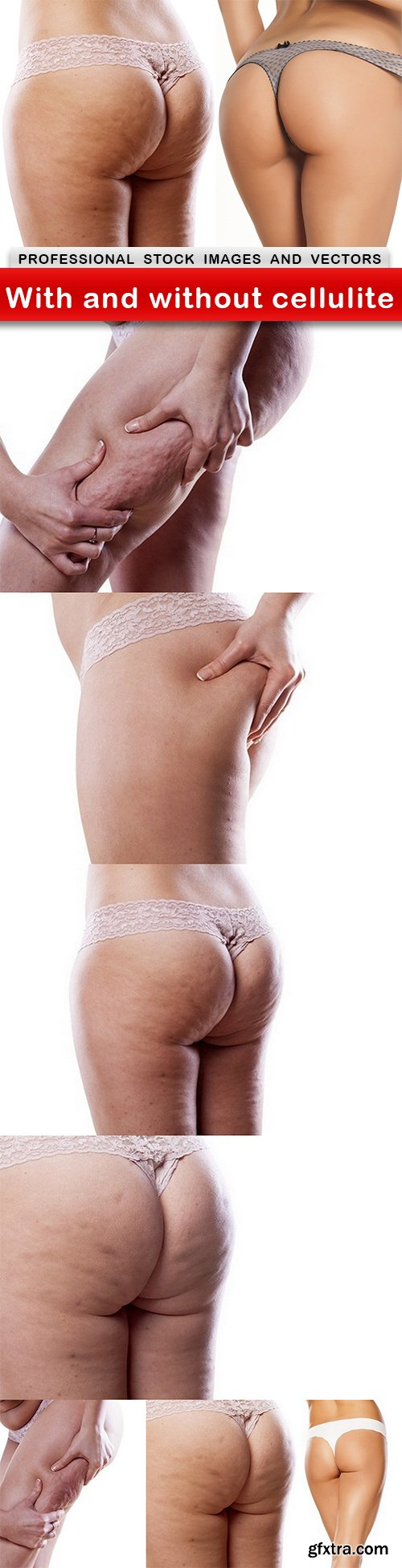 With and without cellulite - 7 UHQ JPEG