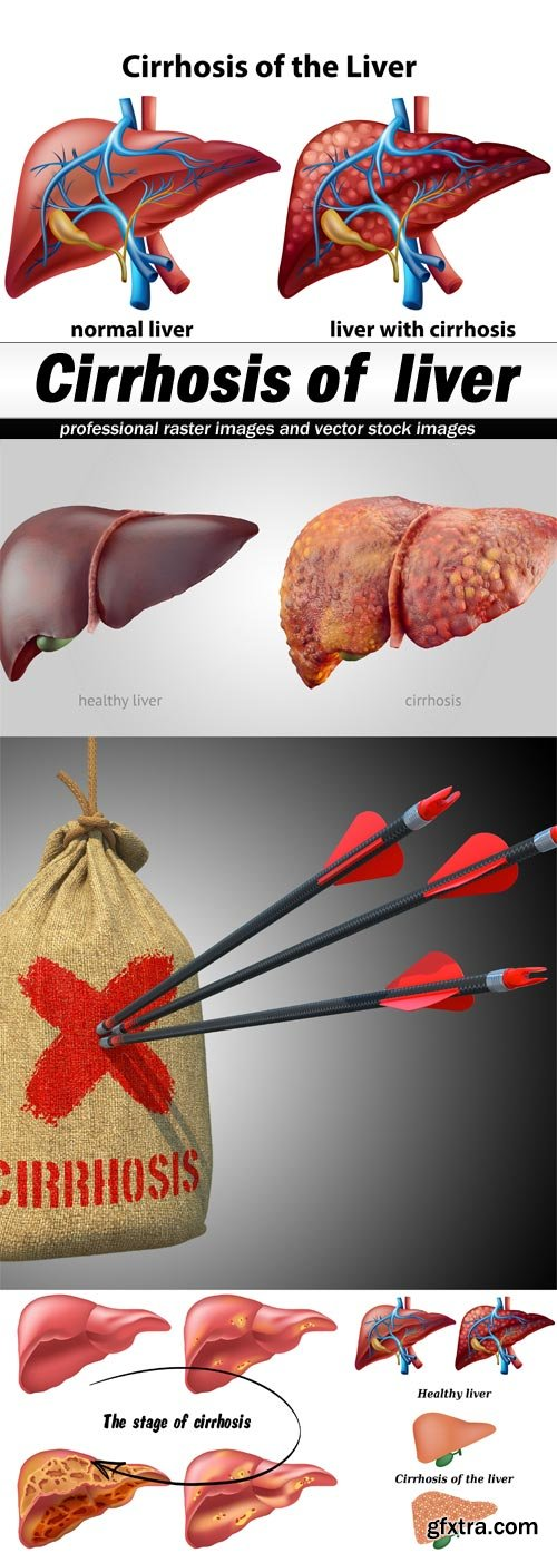 Cirrhosis of liver-5xJPEGs