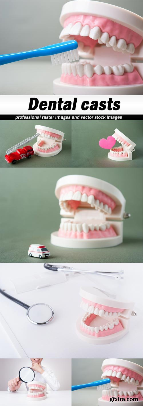 Dental casts - 6 UHQ JPEG