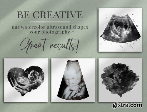 CreativeMarket - Watercolor ultrasound photomasks 5928707