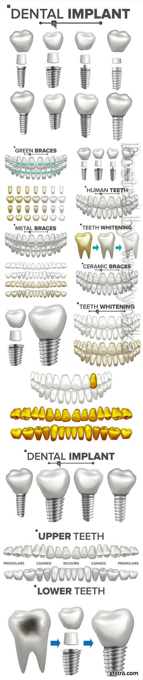 Dental implant illustration vector set